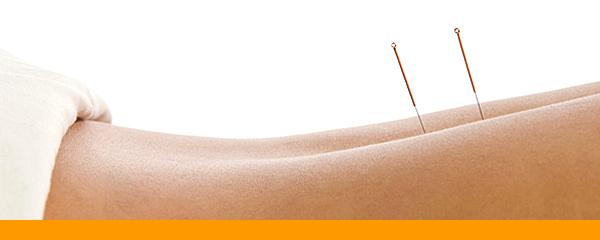 Acupuncture au Centre kinesis